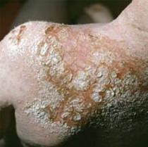Пиодермия - Эпидемиология инфекционных болезней